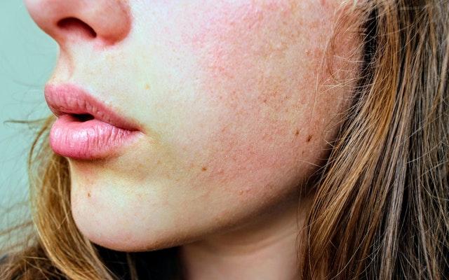 acne emocional como tratar
