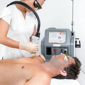 depilação laser masculina