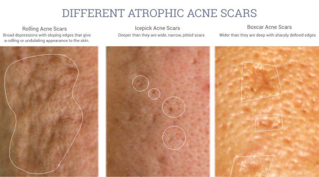 tipos de cicatrizes de acne