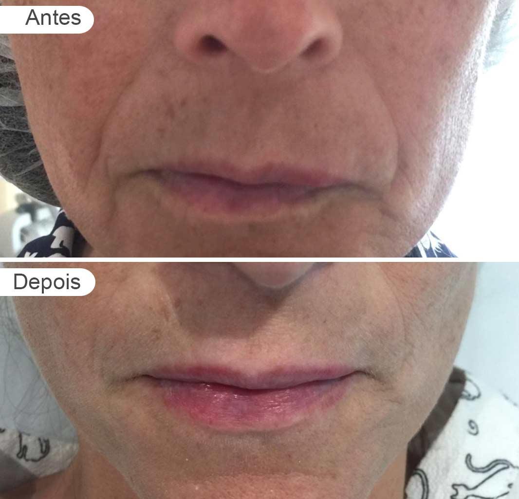 pagina de resultados: antes e depois, preenchimento, rosto frente mulher