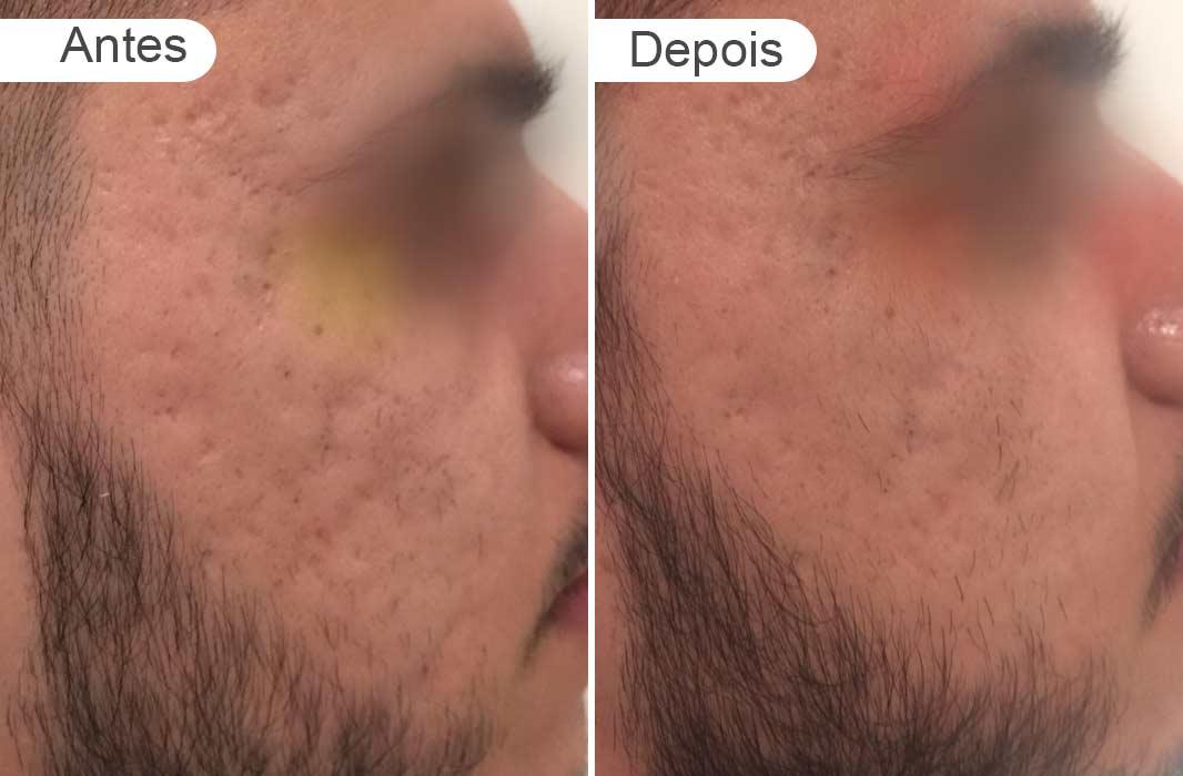 pagina de resultados: antes e depois rosto homem cicatriz ance, direito