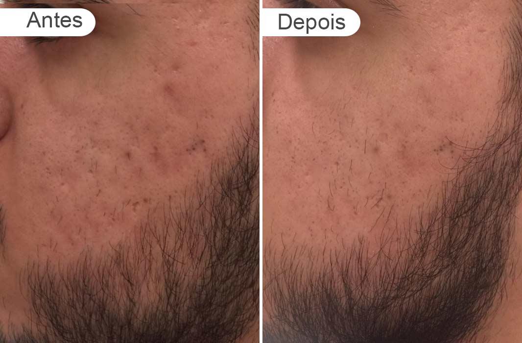 antes e depois rosto homem cicatriz ance, esquerdo