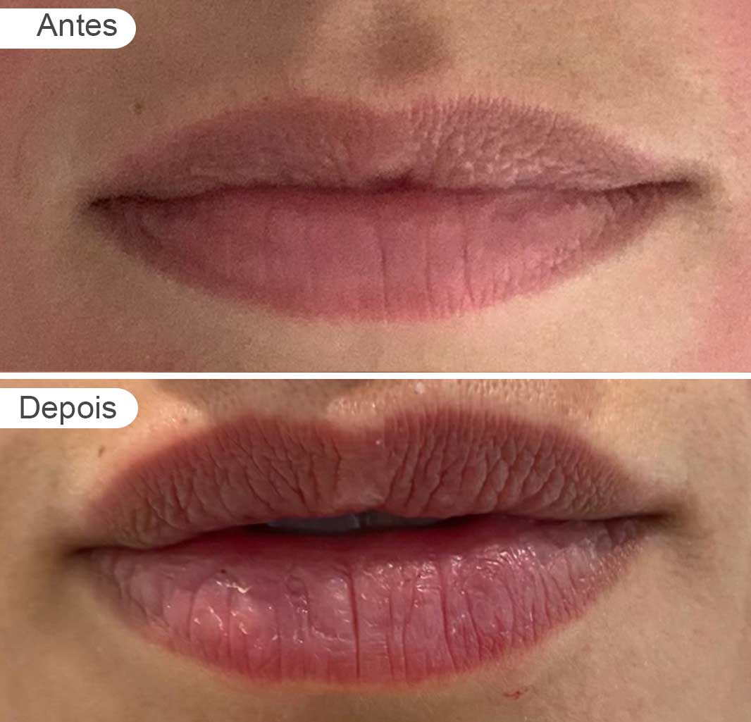pagina resultados: antes e depois, aumento de lábios