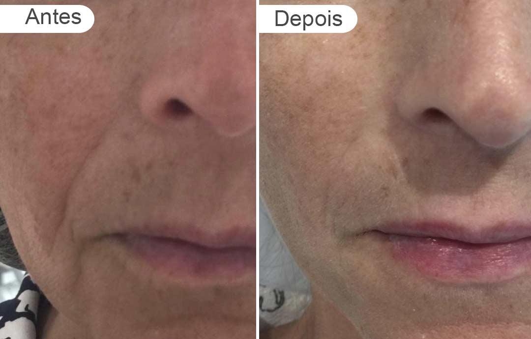 pagina de resultados: antes e depois, preenchimento, rosto de mulher - detalhe